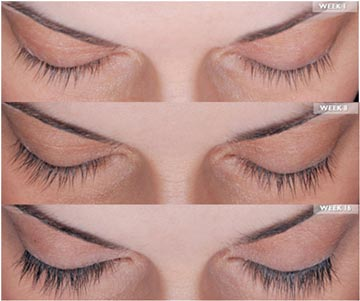 Latisse for Eyelash Growth | South Bay Ophthalmology